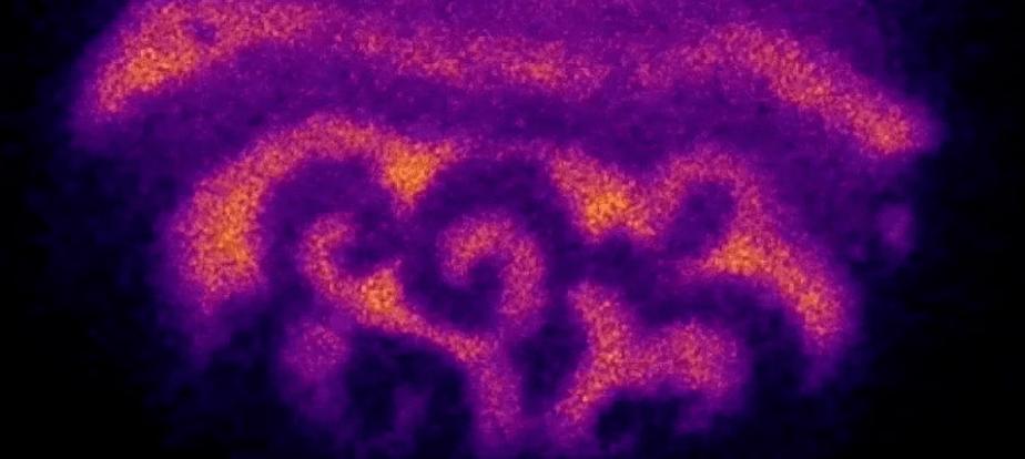 Ученые обнаружили таинственные волны, сопровождающие оплодотворение.